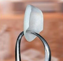 A single porcelain veneer being held up by a dental tool