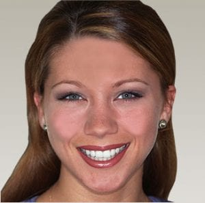 A woman with a gorgeous smile created by cosmetic dentist Dr. Mike Malone