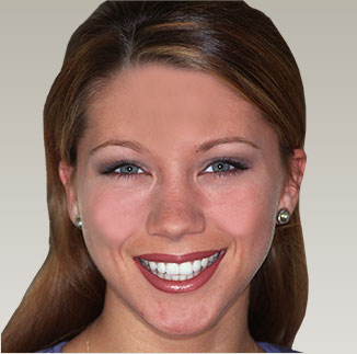 A gorgeous smile created by cosmetic dentist Dr. Mike Malone