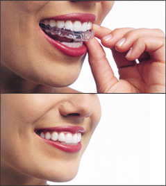 Image top: A woman putting on her Invisalign aligners. Image bottom: a woman smiling with Invisalign on her teeth