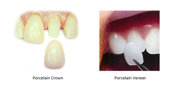 Porcelain crown on left and porcelain veneer on right