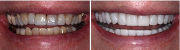 Before-and-after porcelain crowns photo of a patient's smile.