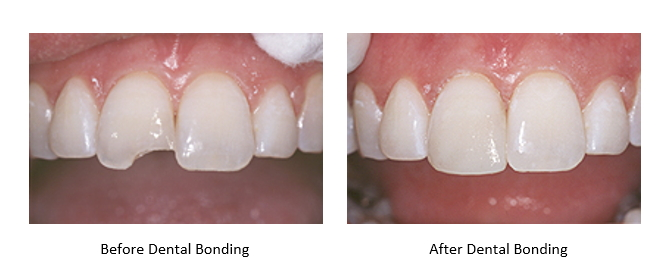 a before and after picture of dental bonding for a chipped tooth.
