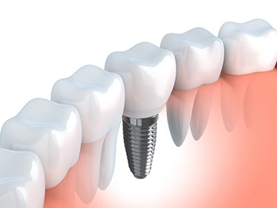 An illustration of a dental implant among natural teeth