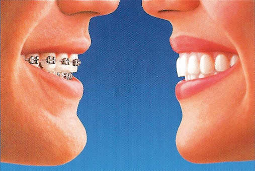 side by side compairison of braces