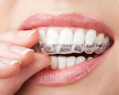 Woman placing teeth whitening trays on her teeth