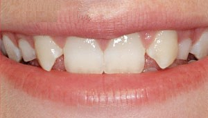 a smile with missing lateral incisors