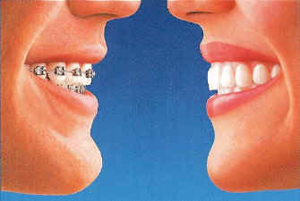 Invisalign compare with traditional braces