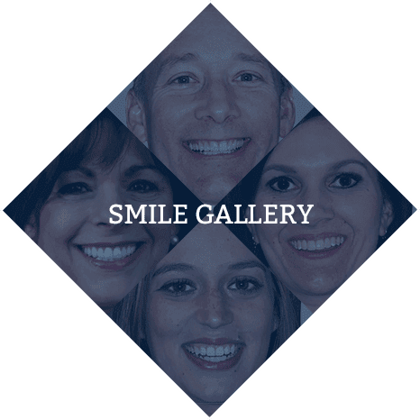 Smile Gallery of Lafayette Louisiana Cosmetic Dentist Dr. Mike Malone