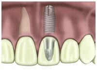 Louisiana dental implant