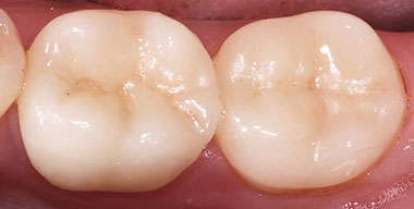 After CEREC Crowns