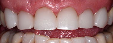 CEREC veneers after