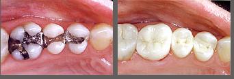 black amalgam fillings replaced with white