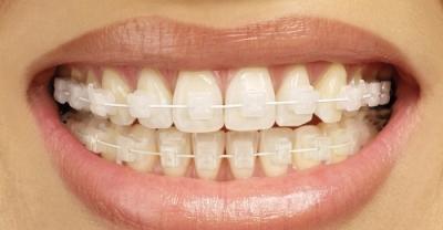 Six-Month Smiles treatment