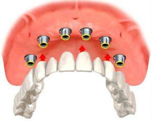 implant-overdentures