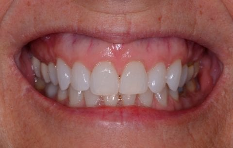 An up-close photo of a Lafayette, LA patient's gummy smile before a Botox treatment. The smile reveals an excess amount of gum tissue above the patient's upper teeth.