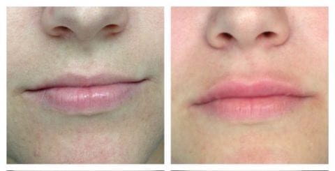 beore and after Juvederm