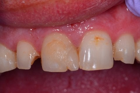 Fractured tooth before dental bonding