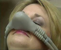 woman with nitrous nosepiece on
